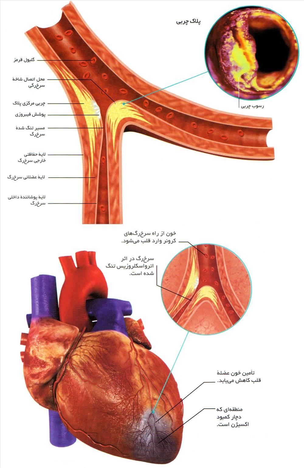 گرفتگی شریانها