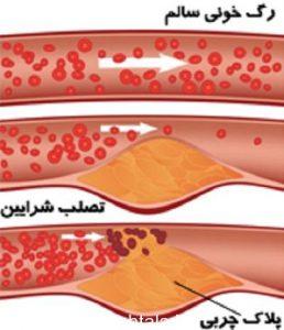 بیماری های عروق کرونر